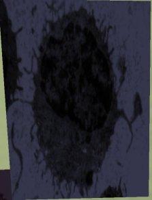 electronmicro.jpg