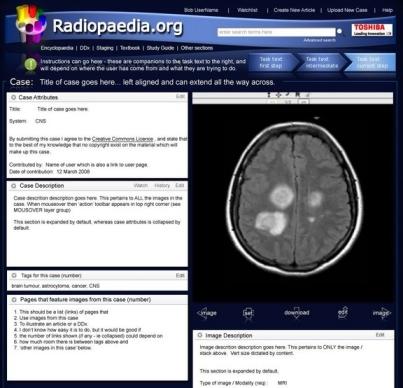 radiopaedia204.jpg