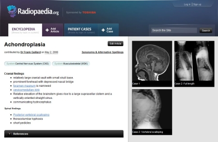 The new design of Radiopaedia