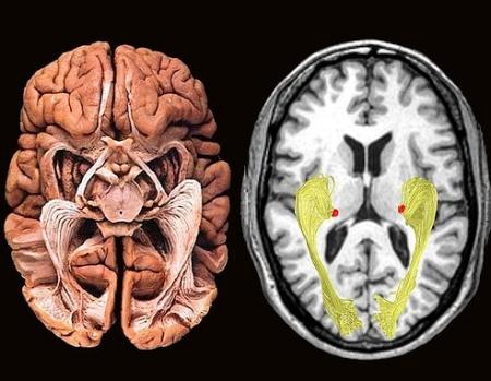 stanford 3d radiology