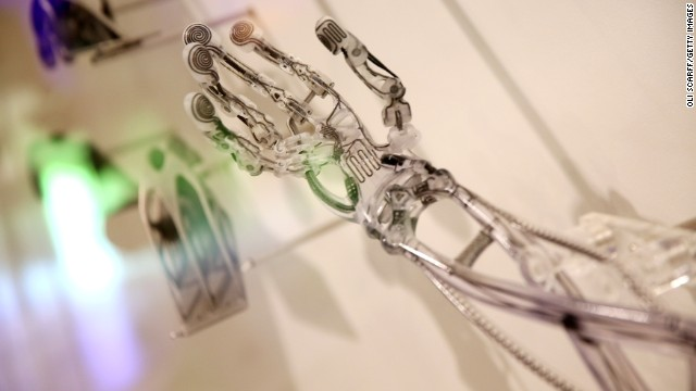 140219121205-medical-technology-robotic-hand-story-top