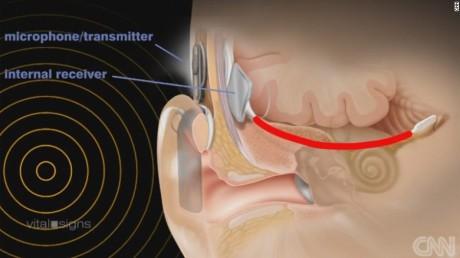 150817101046-auditory-brain-implant-graphic-exlarge-169